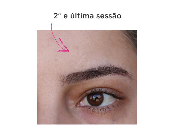 MMP resenha blog leidi turatti tratamento cicatriz 3
