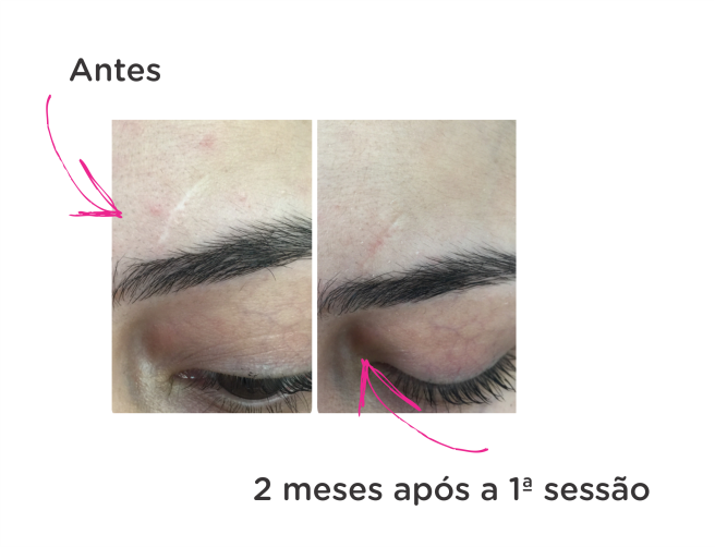 MMP resenha blog leidi turatti tratamento cicatriz